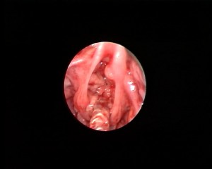 Photo 36 Airway papillomatosis