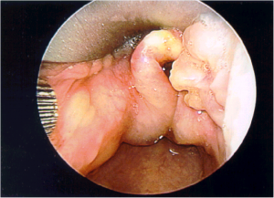Photo 37  laryngeal lymphangioma